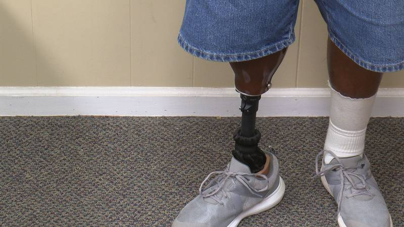 Diabetes and Gangrene caused Holder Mathis to lose his leg