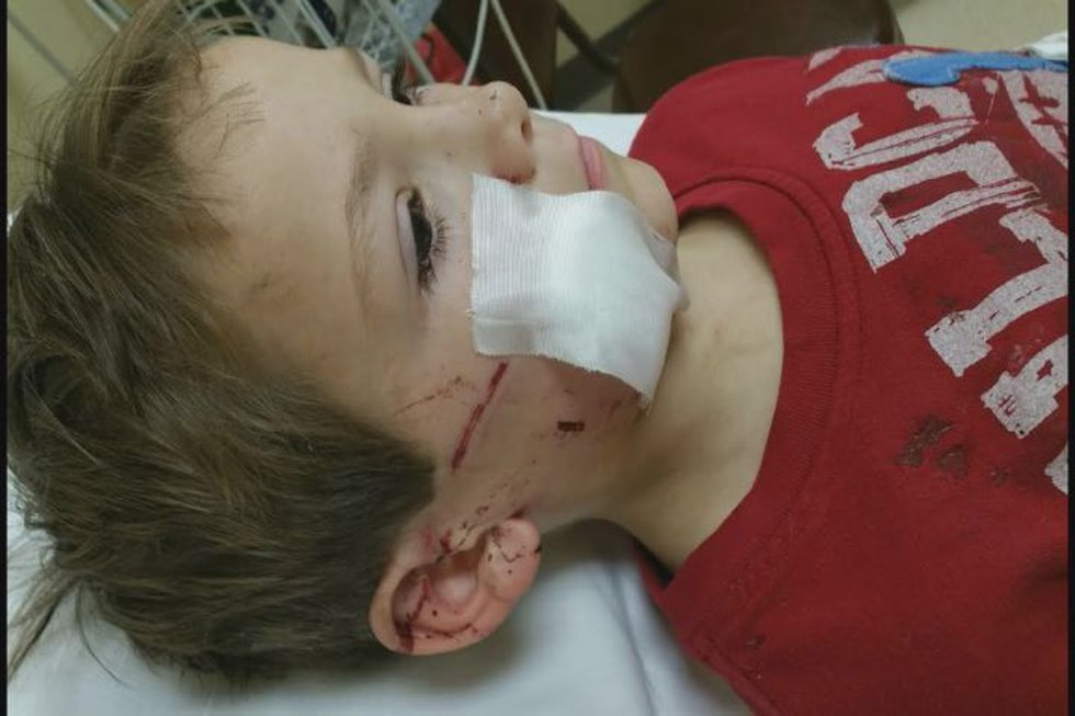 6 year-old Jaxon Smith received multiple cuts to his face when he was attacked by the dog